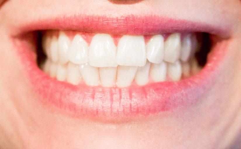 Obecna technika używana w salonach stomatologii estetycznej może sprawić, że odbierzemy piękny uśmieszek.